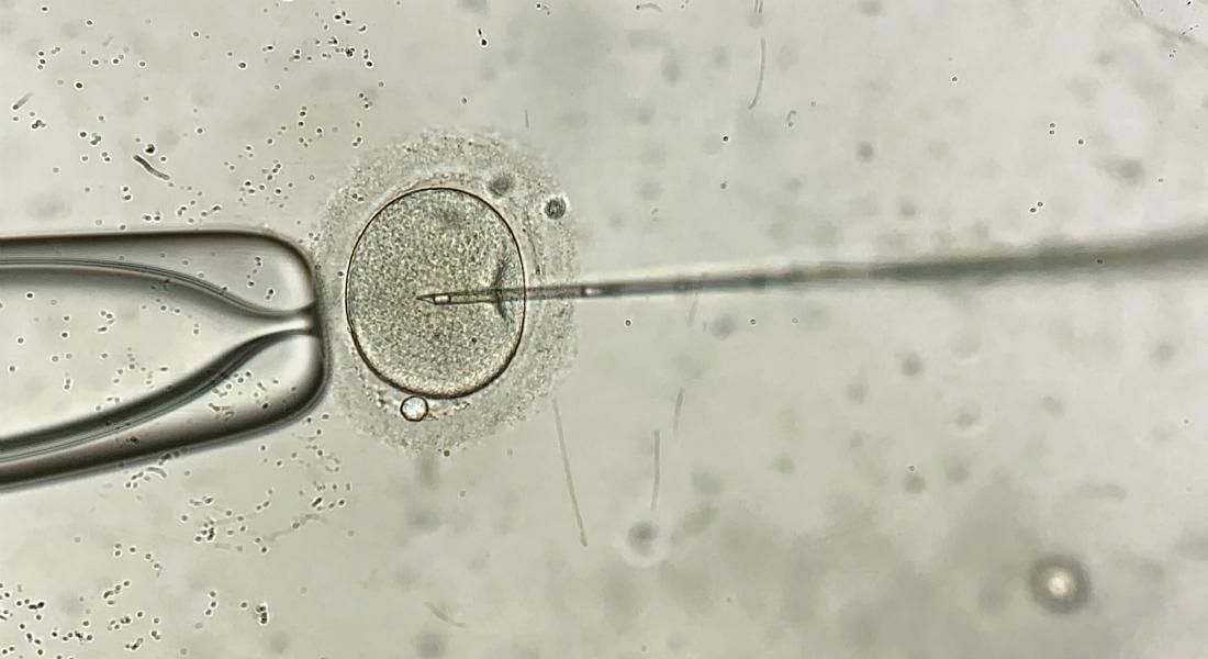 IVF behandling